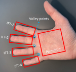 Deep Learning fusion for touchless palmprint and finger texture recognition Logo